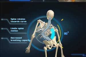 Portfolio for Medical Animation