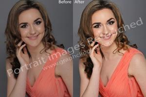 Portfolio for Basic retouch & remove blemishes/moles