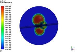 Portfolio for CFD simulation in biomedical area